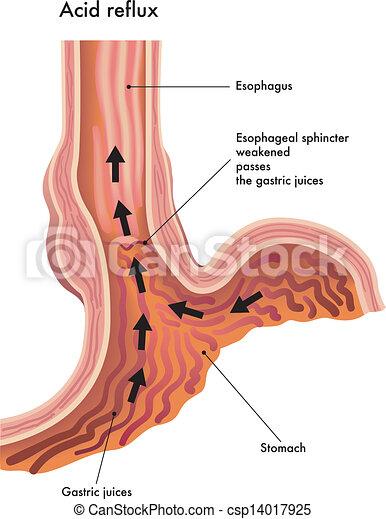 acid reflux - csp14017925