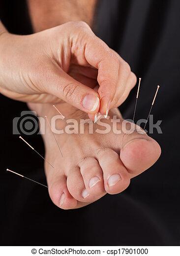akupunktúra, felfogó, bánásmód, ember - csp17901000