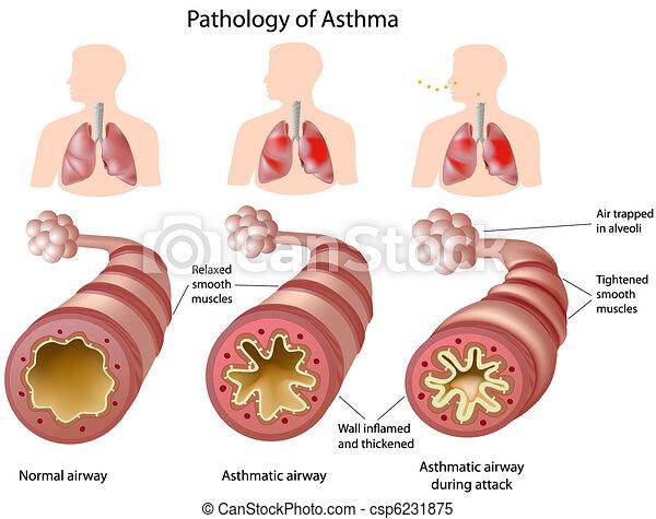 anatómia, asztma - csp6231875