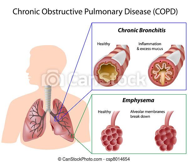 betegség, tüdő, eps8 - csp8014654