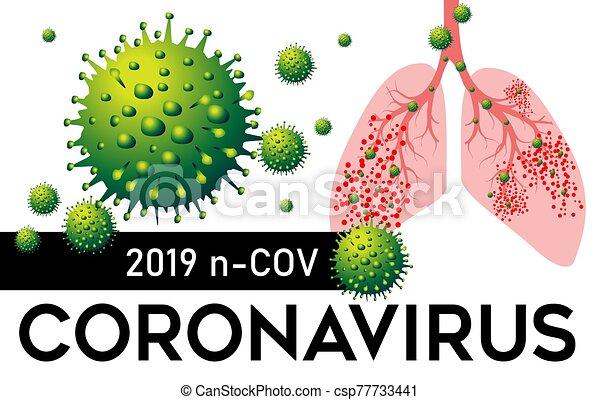 coronavirus, illustration., vektor, pneumonia, 2019, tüdő, észak, cov, kína - csp77733441