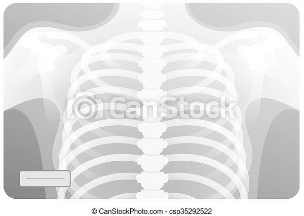 Röntgensugárzás – Wikipédia