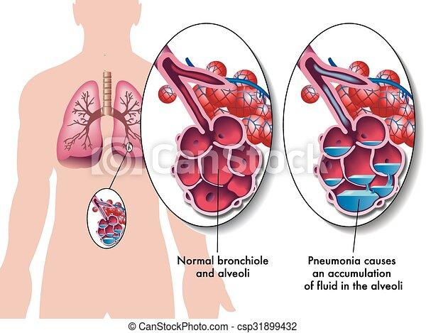 pneumonia - csp31899432