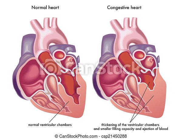 szív, congestive - csp21450288