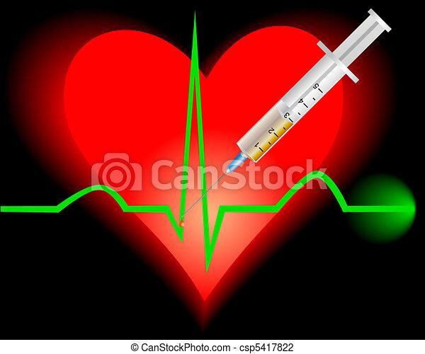 szív, kardiogram - csp5417822