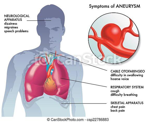 tünetek, körülírt ütőértágulat - csp22786883