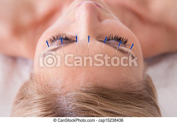 tű, akupunktúra, felfogó, nő, terápia - csp15238436