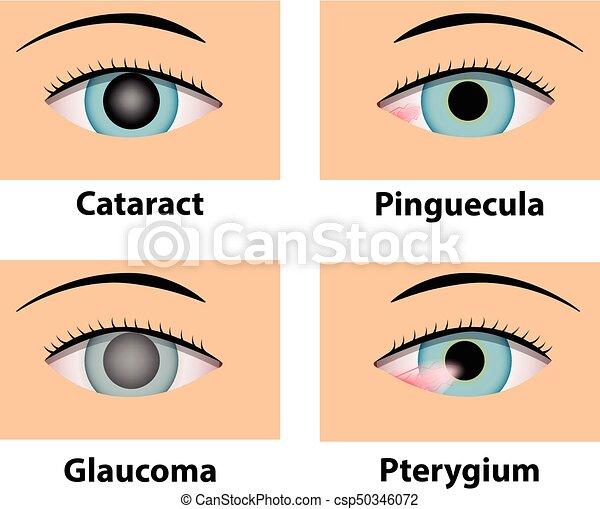 pterygium és látás)